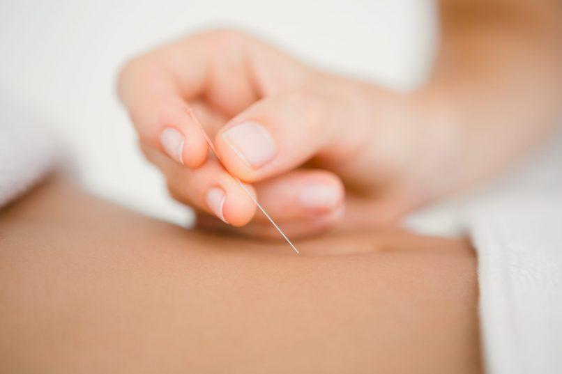 facial acupuncture - Eu Yan Sang