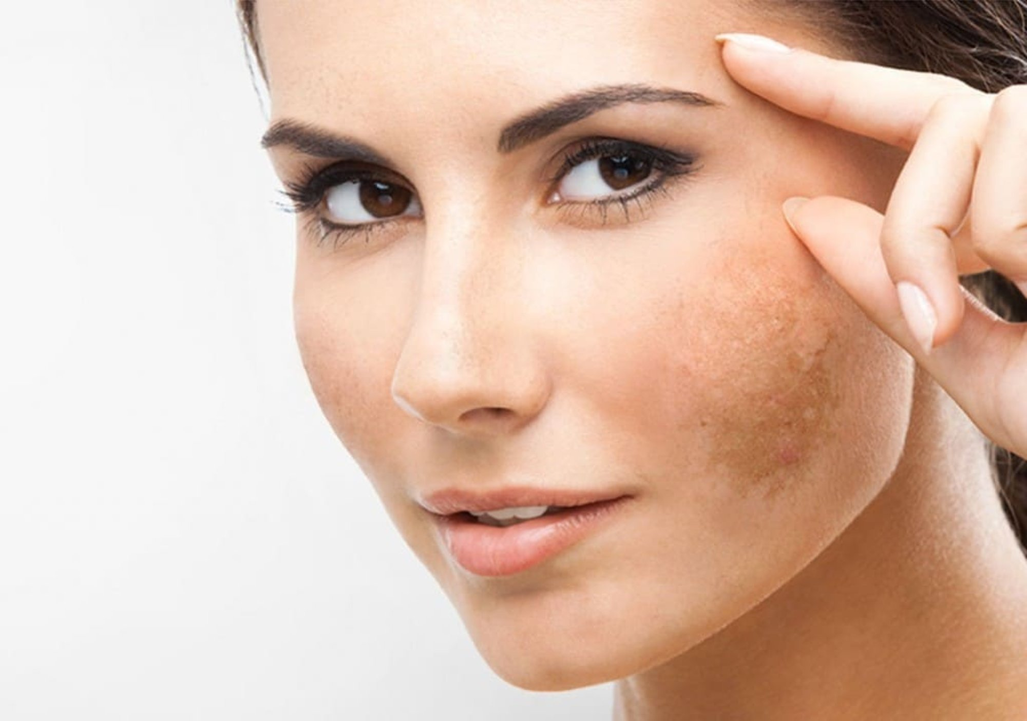 how to get rid of hyperpigmentation best brightening skincare